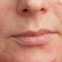 Mogući uzroci crvenila na licu i efikasno rešenje koje nudi COLWAY