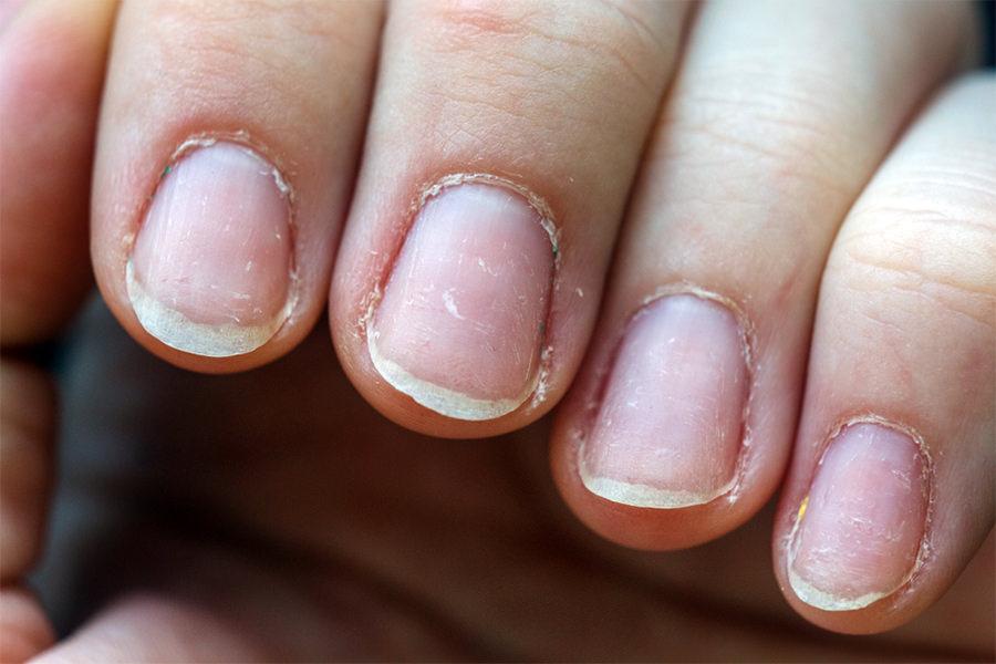 Istanjeni i problematični nokti na rukama