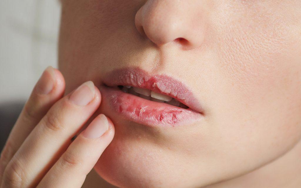 Devojka sa ispucalim usnama