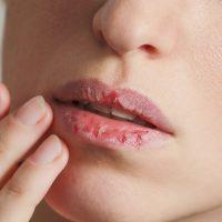 Ekspresno zalečite ispucale usne ribljim kolagenom