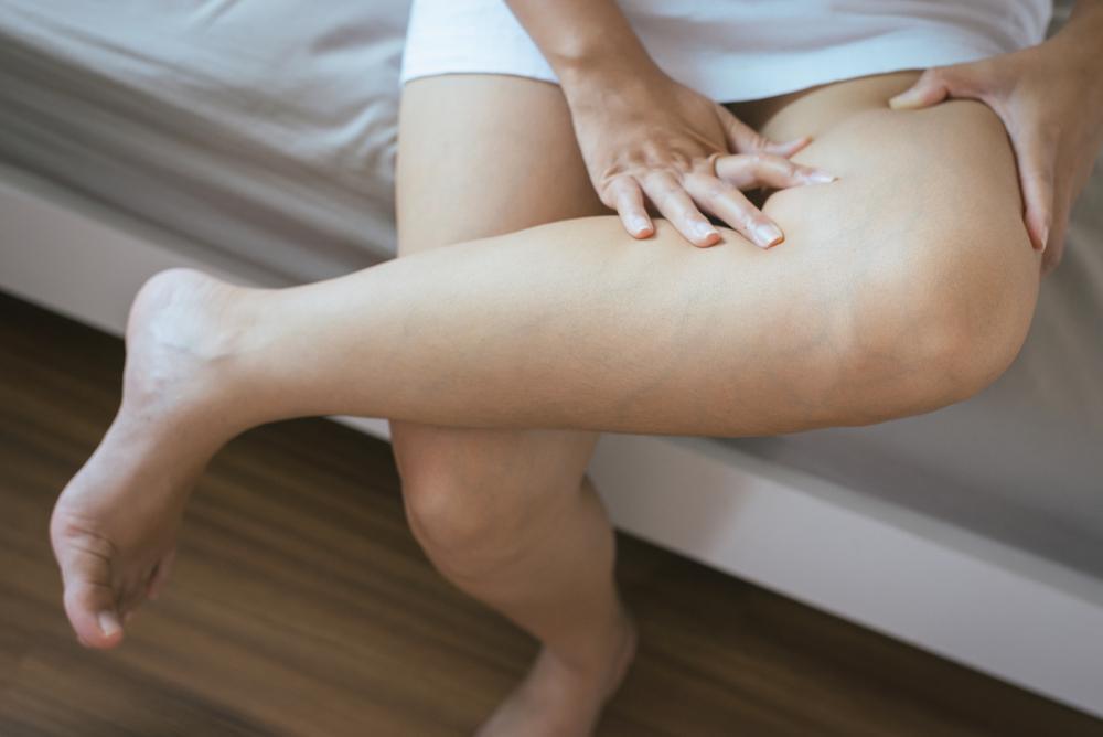 Teske i ostecene noge