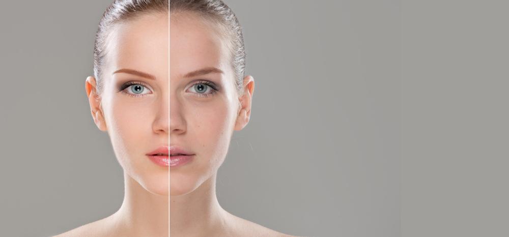 Slika žene sa bledom kožom