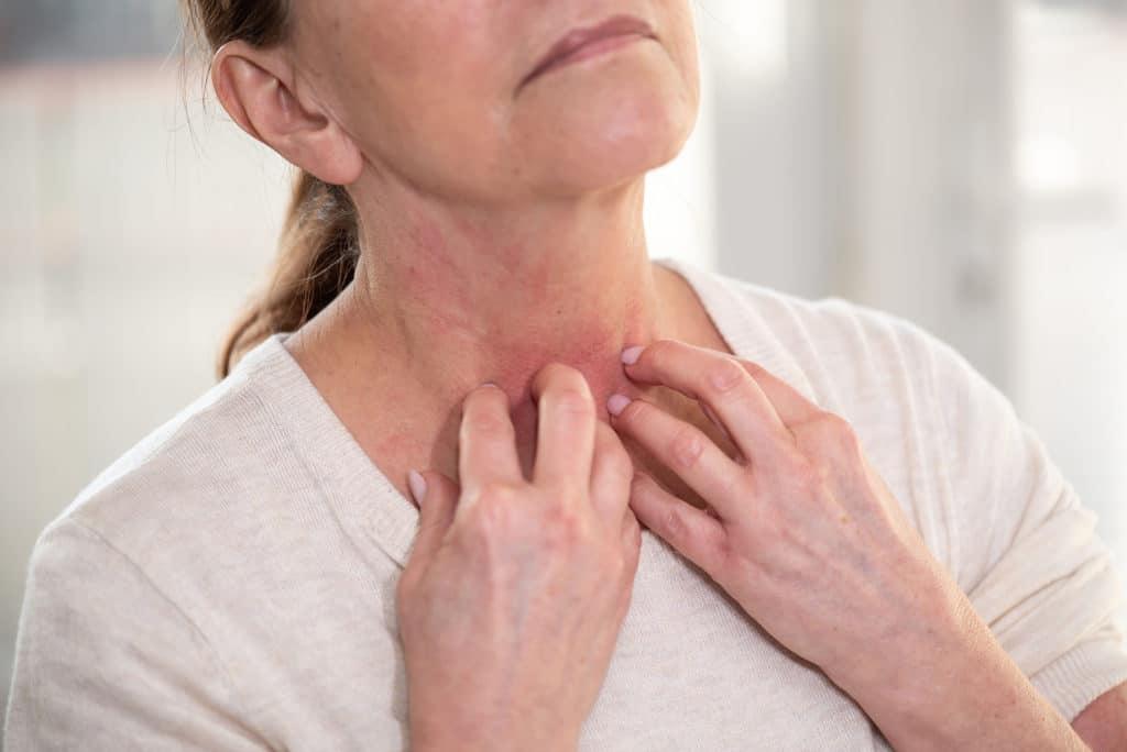 Žena sa osipom na koži se češe