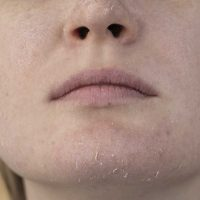 Rešite se suve kože oko usana i brade uz pomoć ribljeg kolagena