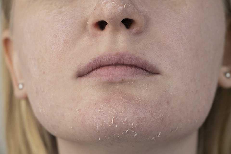 Ispucala koža oko brade i usana