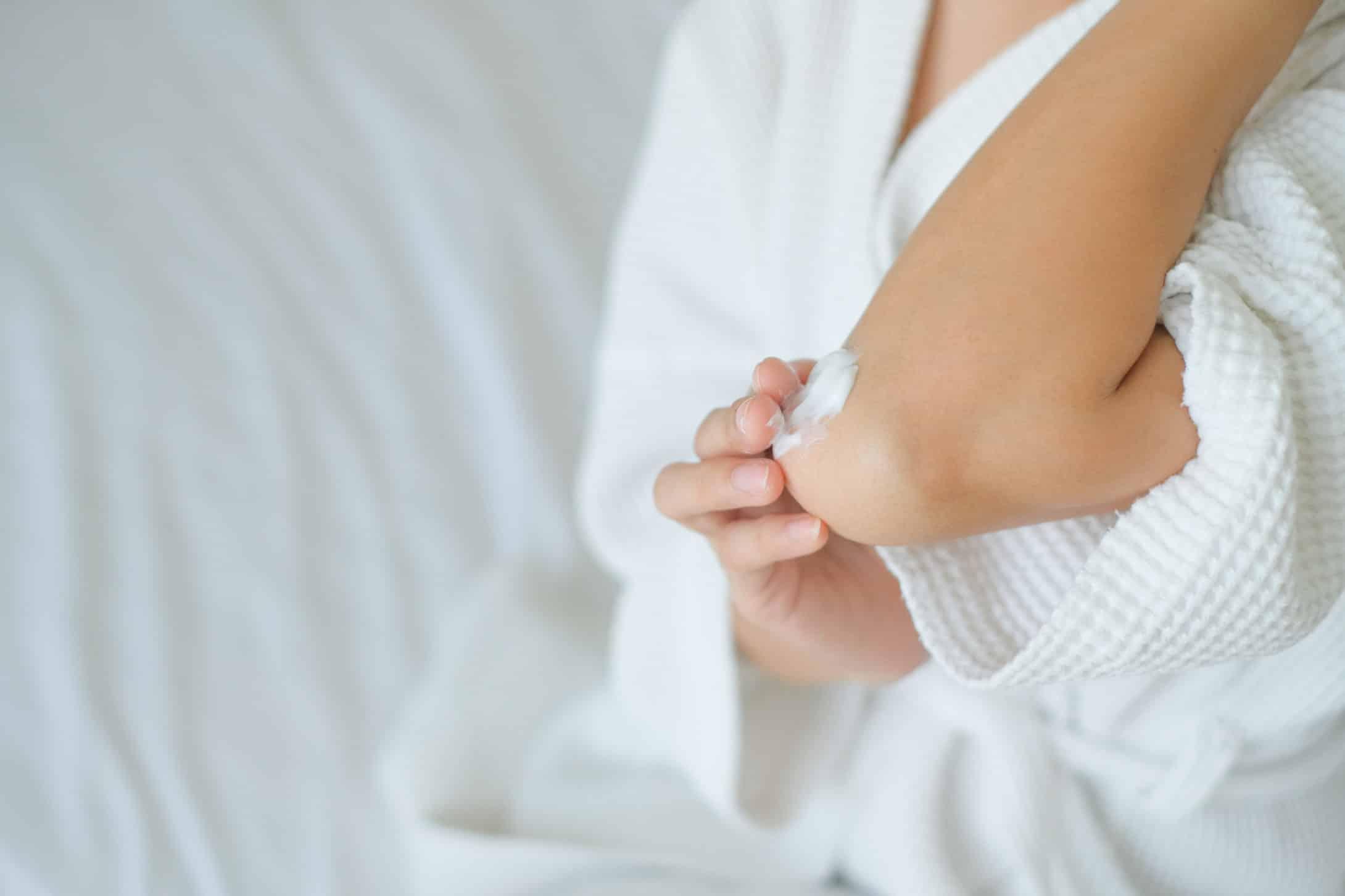 Žena nanosi kremu na suvu kožu lakta